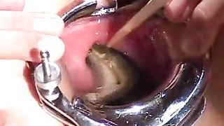 Teens a-hole gaping wide to take void urine and cum